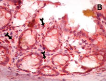 Formalin-fixed paraffin-embedded rat colon in colitis-induced tissues are stained with CD8 Antibody (Cat. No. 250596) used at 1:100 dilution (data from Karaca T et al. 2015).