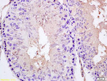 SPAG5 staining in rat testis. Formalin-fixed paraffin-embedded rat testis is stained with SPAG5 Antibody (Cat. No. 250866) used at 1:200 dilution.