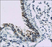 Somatostatin receptor type 5 (SSTR5) staining in mouse lung. Paraffin-embedded mouse lung is stained with SSTR5 Antibody (Cat. No. 251509) used at 1:200 dilution.