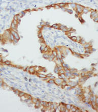 TNF-alpha staining in human mammary cancer. Paraffin-embedded human mammary cancer is stained with TNF-alpha (Cat. No. 251900) used at 1:200 dilution.