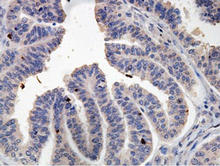 AMH staining in ovarian cancer. Formalin-fixed paraffin-embedded human ovary carcinoma tissue is stained with AMH Antibody (Cat. No. 252044) used at 1:100 dilution.