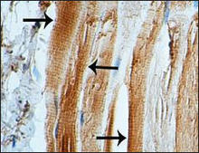 STUB1 staining in human fetal skeletal muscle. Paraffin-embedded human fetal skeletal muscle is stained with STUB1 Antibody (Cat. No. 252168) used at 1:100 dilution.