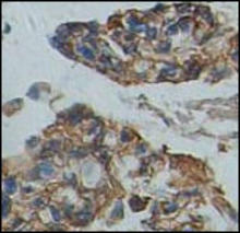 Fibronectin staining in human lung carcinoma. Paraffin-embedded human lung carcinoma is stained with the Fibronectin Antibody (Cat. No. 252234) used at 1:100 dilution.