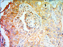 Immunohistochemical analysis of paraffin-embedded lung cancer tissues using PTK7 (4F9) Antibody (Cat. No. 253038) with DAB staining.