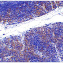 Immunohistochemistry of TNFRSF14 in mouse thymus tissue with TNFRSF14 Antibody (Cat. No. 253612) at 1 ug/mL.