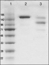 Quality control of human IgE preparation from hybridoma (lane 2) vs. IgE sample purified from myeloma patient serum (lane 3). MW markers are shown in lane 1.